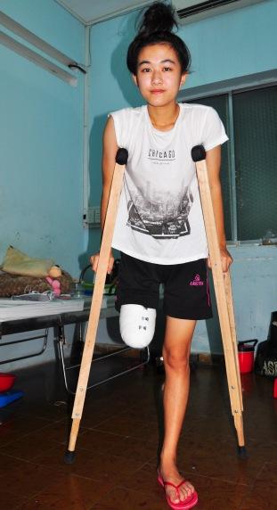 Do y tế tắc trách nữ sinh Hà Vi đã bị cưa mất một chân